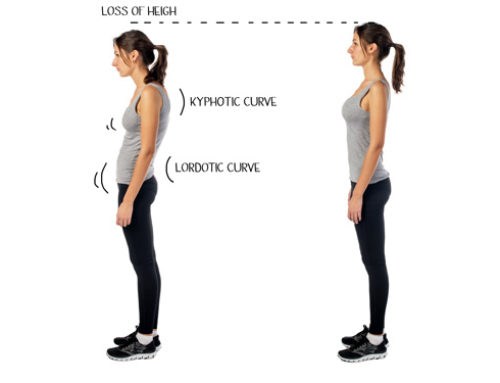 How to treat Kyphosis